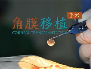 角膜移植手术